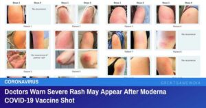 Doctors Warn Severe Rash May Appear After Moderna COVID-19 Vaccine Shot