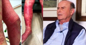 HORRIFYING: Man's Skin 'Peeled Off' Due To Reaction From Johnson & Johnson COVID Vaccine