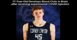 Read more about the article 17 Year Old Healthy American Basketball Player Develops 3 Blood Clots In His Brain After Covid Vaccine