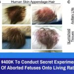 Dr Fauci Spent $400K To Conduct Secret Experiments Transplanting Scalps Of Aborted Fetuses Onto Living Rats