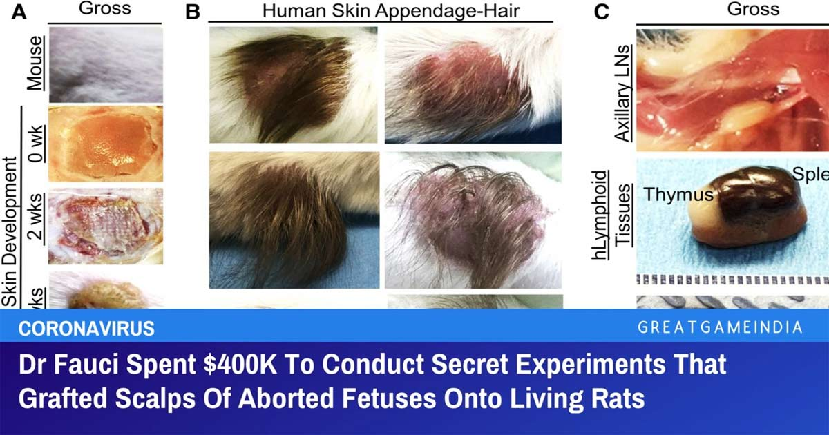 You are currently viewing Dr Fauci Spent $400K To Conduct Secret Experiments Transplanting Scalps Of Aborted Fetuses Onto Living Rats