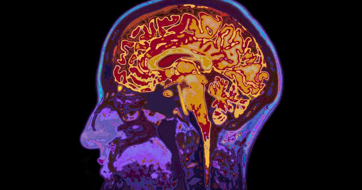 You are currently viewing Spike proteins administered intravenously are engineered to cross the blood-brain barrier, can cause cerebral hemorrhage