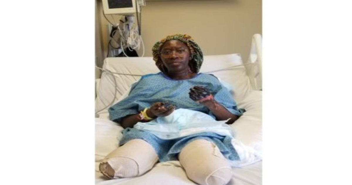 You are currently viewing Minnesota Woman Loses Both Legs and Both Hands Following Second Pfizer COVID-19 Shot