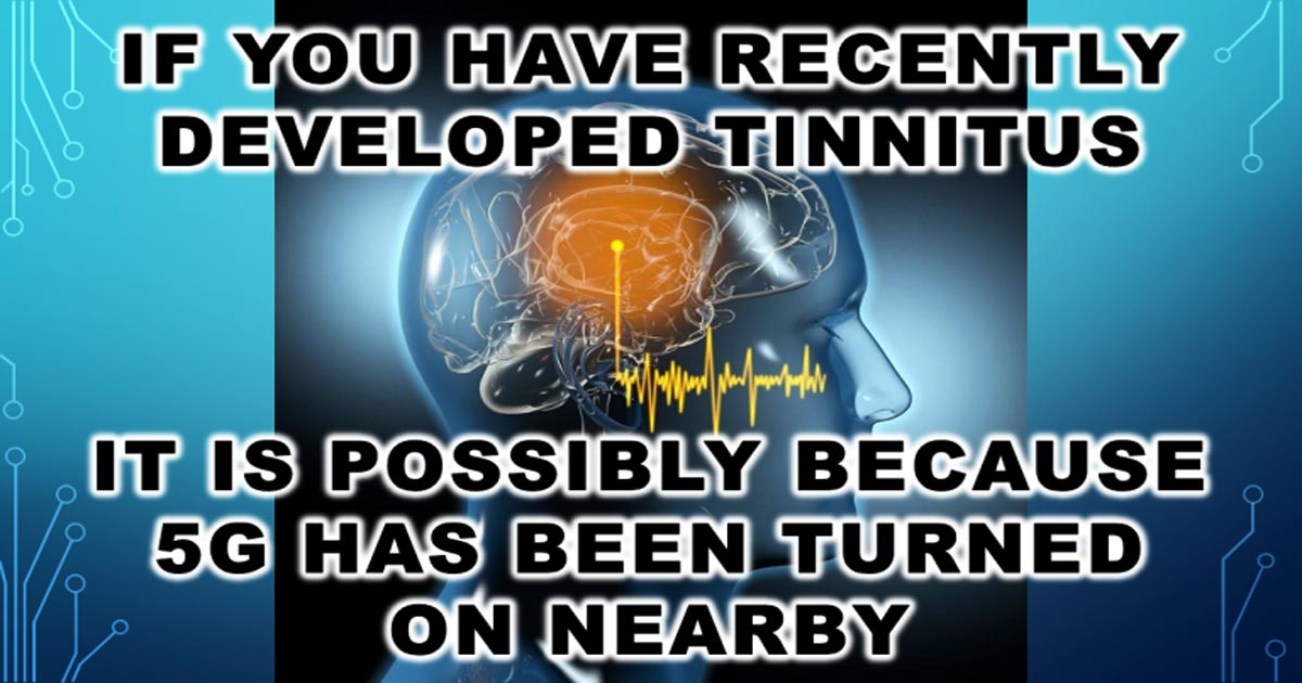 You are currently viewing If You Have Recently Developed Tinnitus, It Is Possibly Because 5G Has Been Turned on Nearby