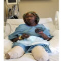Woman loses both legs and arms after Pfizer second shot